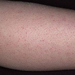 Что такое волосяной кератоз?