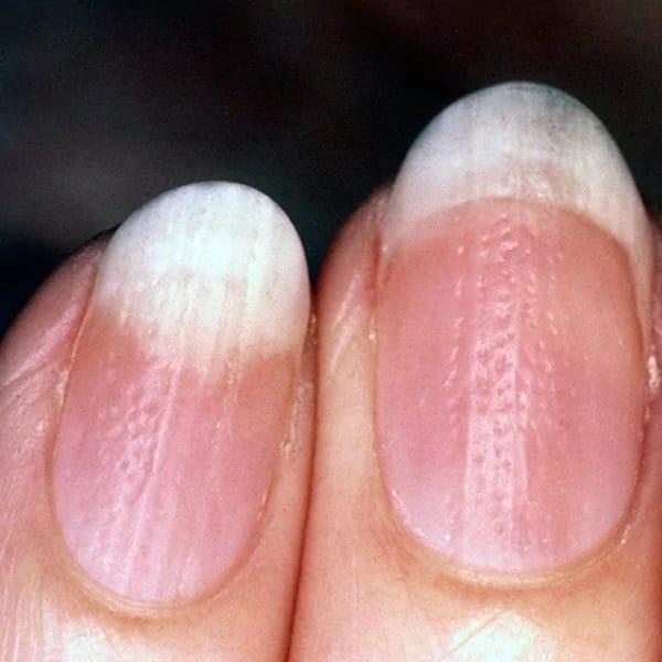 В чем разница: псориаз ногтей против грибка