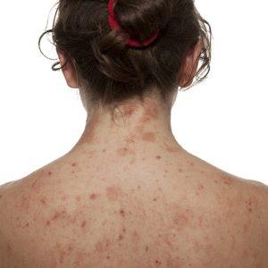 Как лечить себорейный дерматит спины