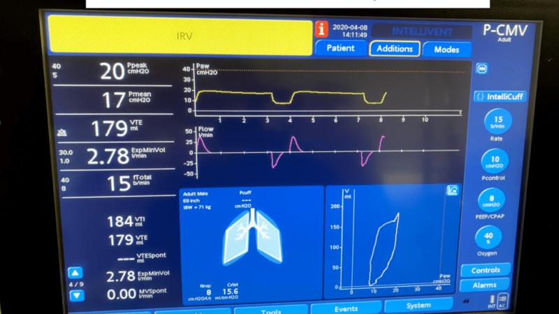 REBEL Crit Cast Ep3.0: вентиляция со сбросом давления в дыхательных путях (APRV)